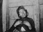 Black and white photograph of a woman with her face and hands covered in blisters